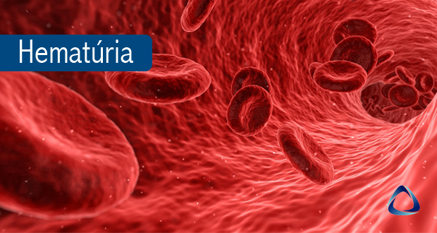 Sangue na Urina (Hematúria) - Instituto Abathon